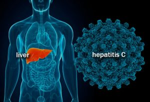 Hepatitis_C_Virus